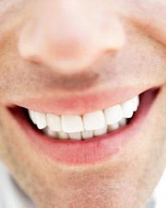 vita fina tänder